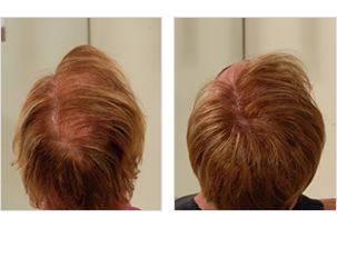 Hair Solutions Client Example 3
